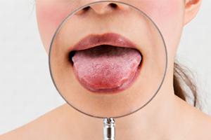 舌 が ヒリヒリ コロナ